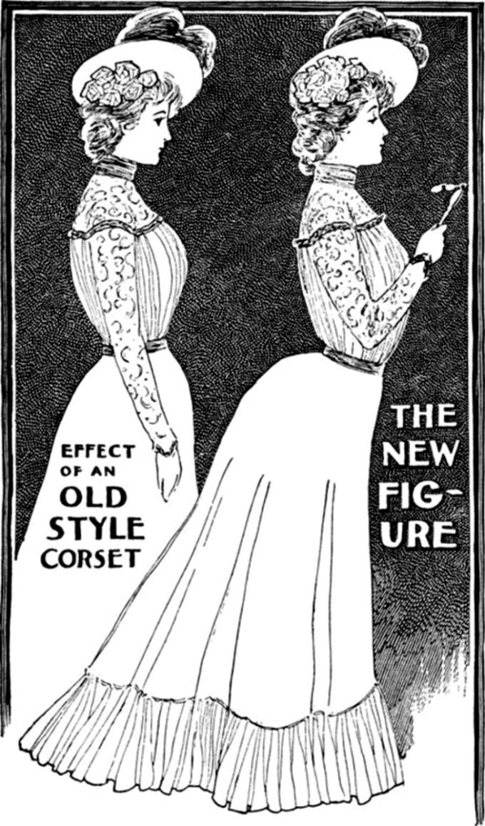 uvelichenie-grudi-100-let-nazad-kak-eto-bylo-18