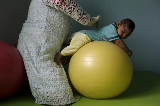 Физиотерапевт работает с четырёхмесячным ребёнком, который появился на свет с микроцефалией, в больнице Hospital Pedro I в городе Кампина-Гранди, Бразилия, 17 февраля 2016 года.
