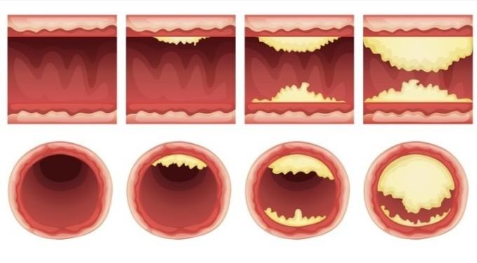 10-produktov-dlya-prochistki-arteriy-1