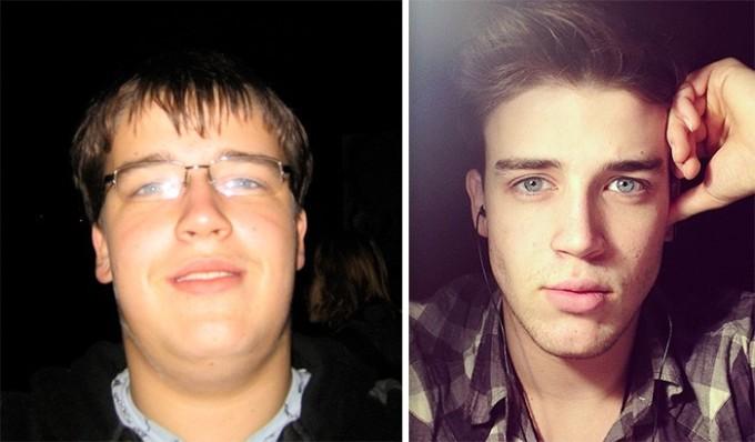Потеря 30 лишних килограмм очень заметна на лице. На первый взгляд кажется, что это два разных человека.